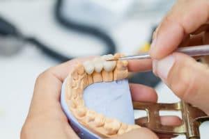 Dental Bridge - Hamamoto Dentistry - Bothell WA Dentist