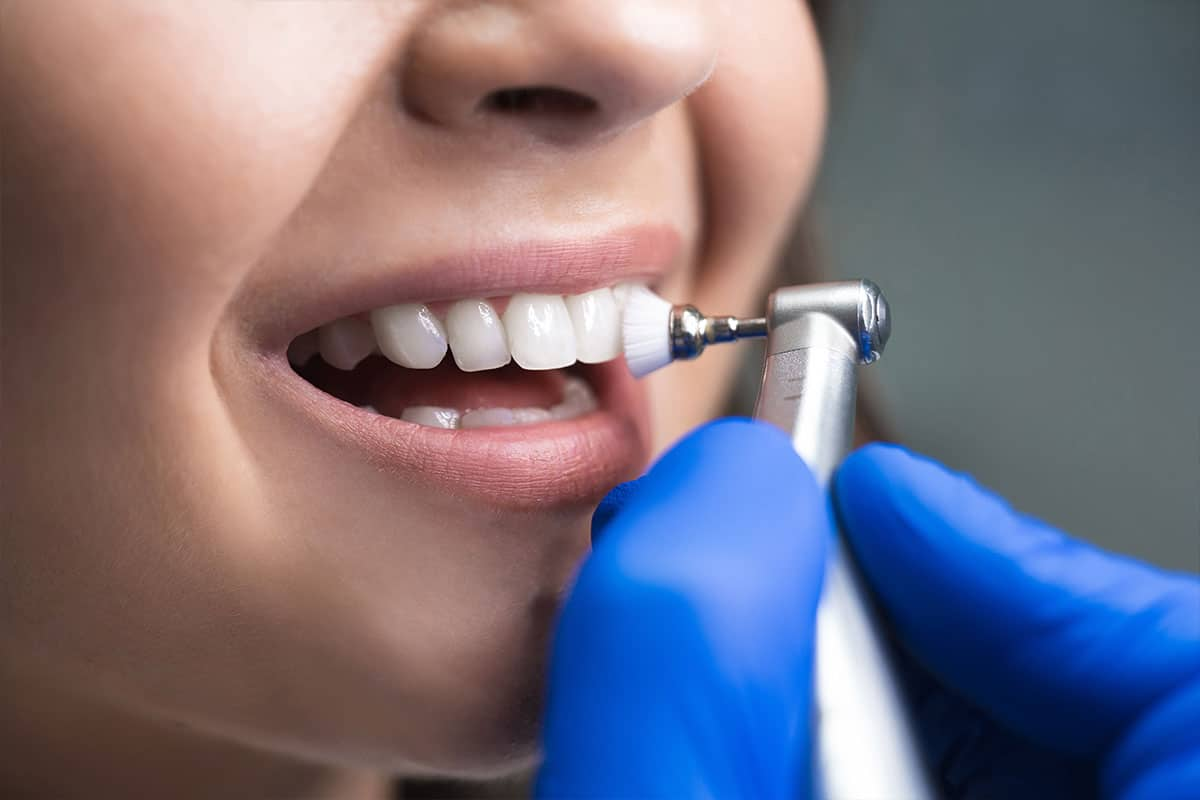 Dental Cleaning - Hamamoto Dentistry - Bothell Dentist