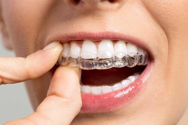 Invisalign - Hamamoto Dentistry